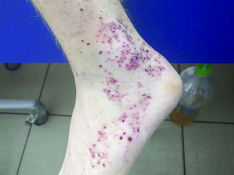 vasculita hemoragică a durerilor articulare)