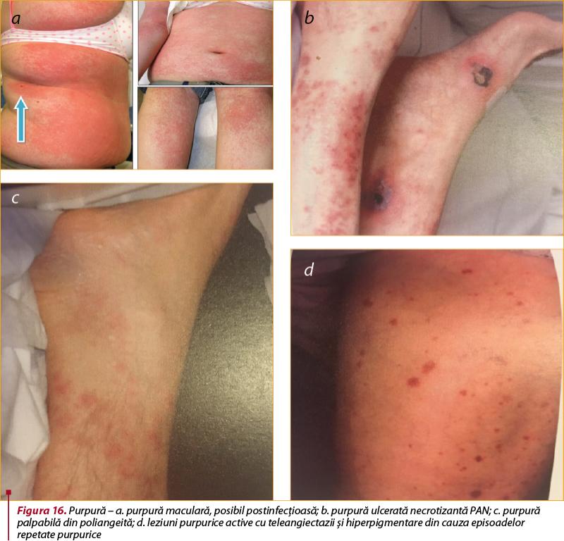 vasculită sistemică boală a țesutului conjunctiv dacă dureri articulare rătăcitoare