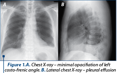 Figure 1.A. Chest X-ray – minimal opacifiation of left costo-frenic angle. B. Lateral chest X-ray – pleural effusion