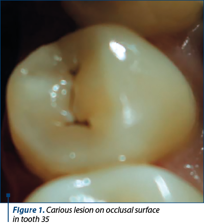 Figure 1. Carious lesion on occlusal surface  in tooth 35