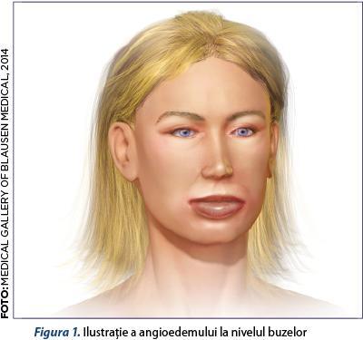durere în mușchii articulației șoldului