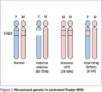 Figura 1. Mecanismul genetic în sindromul Prader-Willi