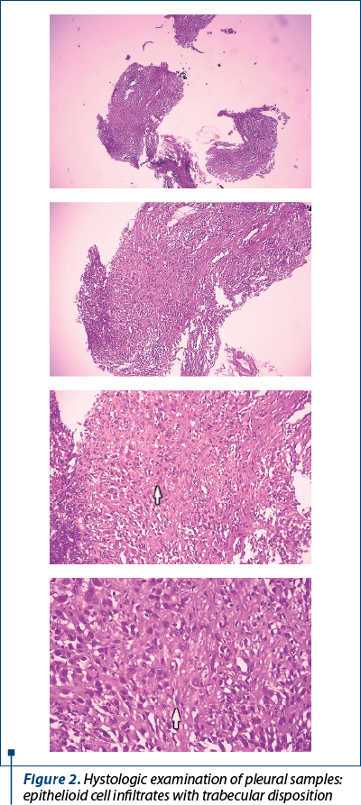 Figure 2. Hystologic examination of pleural samples: epithelioid cell infiltrates with trabecular disposition