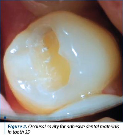 Figure 2. Occlusal cavity for adhesive dental materials in tooth 35