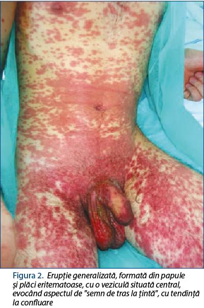 Pastile sau unguent pentru durere la articula?iile genunchiului