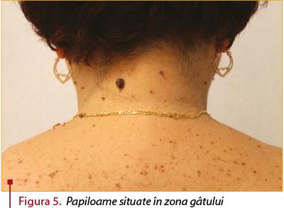 tratament cu peroxid de papilom