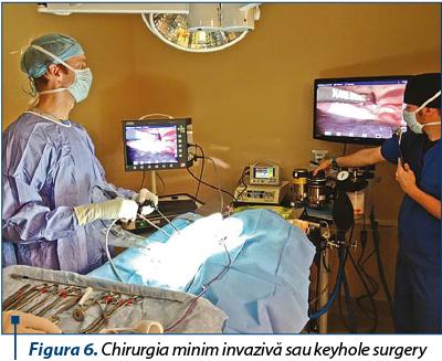 laparoscopie cu o varicoză pelviană mică de la durere varicoză