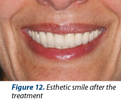 Figure 12. Esthetic smile after the treatment
