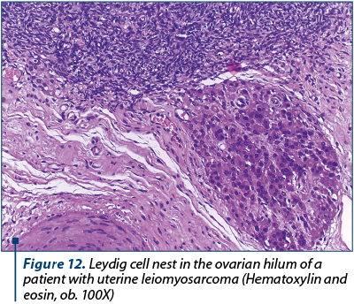 Figure 12. Leydig cell nest in the ovarian hilum of a patient with uterine leiomyosarcoma (Hematoxylin and eosin, ob. 100X)