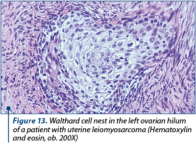 Figure 13. Walthard cell nest in the left ovarian hilum of a patient with uterine leiomyosarcoma (Hematoxylin and eosin, ob. 200X)