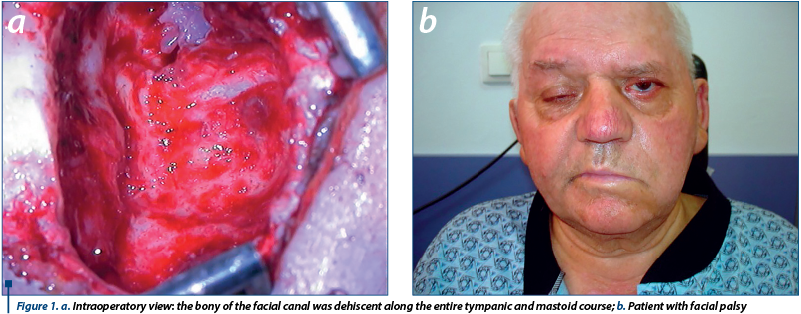 Figure 1. a. Intraoperatory view: the bony of the facial canal was dehiscent along the entire tympanic and mastoid course; b. Patient with facial palsy