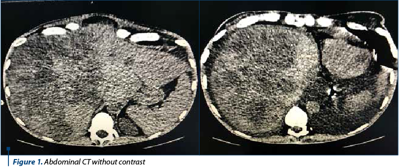 Figure 1. Abdominal CT without contrast