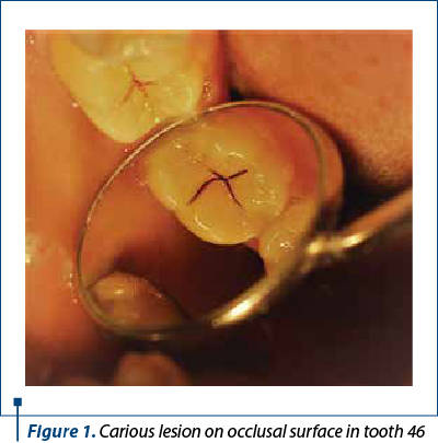 Figure 1. Carious lesion on occlusal surface in tooth 46