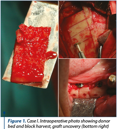 Figure 1. Case I. Intraoperative photo showing donor bed and block harvest, graft uncovery (bottom right)