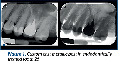 Figure 1. Custom cast metallic post in endodontically treated tooth 26