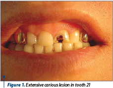 Figure 1. Extensive carious lesion in tooth 21
