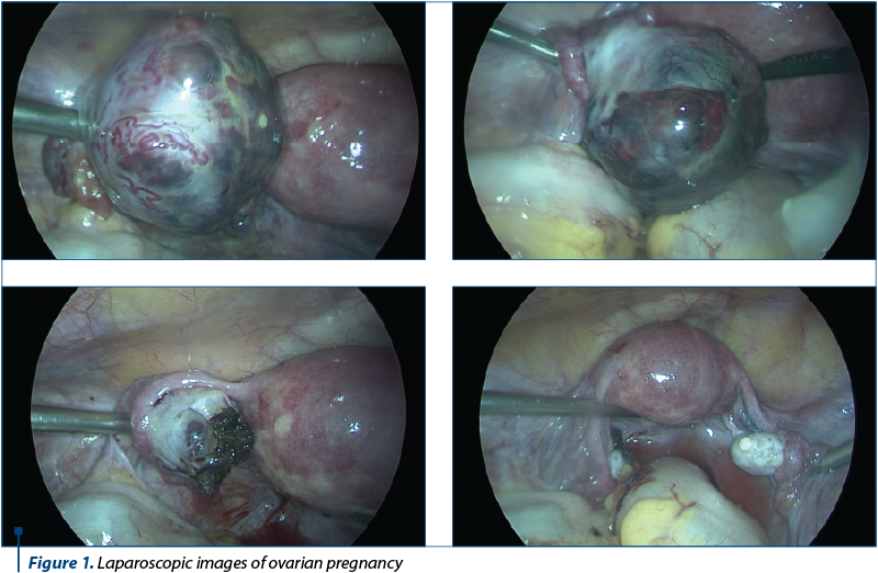 Figure 1. Laparoscopic images of ovarian pregnancy