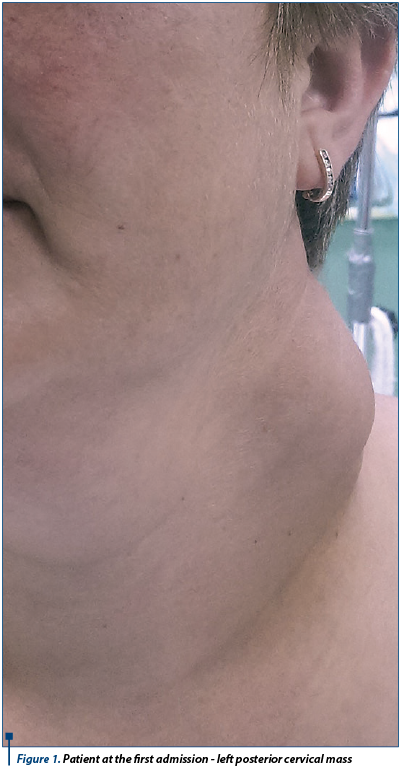 Figure 1. Patient at the first admission - left posterior cervical mass