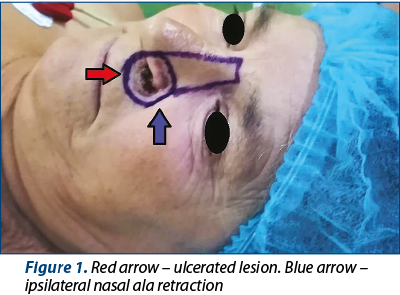 Figure 1. Red arrow – ulcerated lesion. Blue arrow – ipsilateral nasal ala retraction