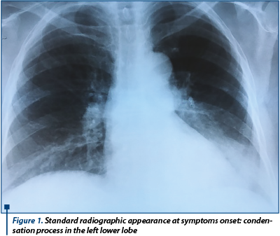 Figure 1. Standard radiographic appearance at symptoms onset: condensation process in the left lower lobe