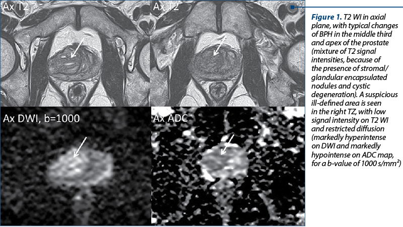 Figure 1. T2 WI in axial plane, with typical changes of BPH in the middle third and apex of the prostate (mixture of T2 signal intensities, because of the presence of stromal/glandular encapsulated nodules and cystic degeneration). A suspicious ill-defined area is seen in the right TZ, with low signal intensity on T2 WI and restricted diffusion (markedly hyperintense on DWI and markedly hypointense on ADC map, for a b-value of 1000 s/mm²)