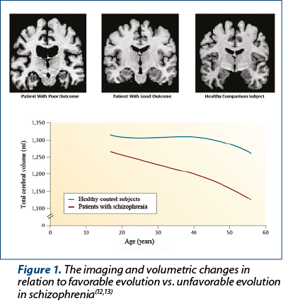 Figure 1. The imaging and volumetric changes in relation to favorable evolution vs. unfavorable evolution in schizophrenia(12,13)