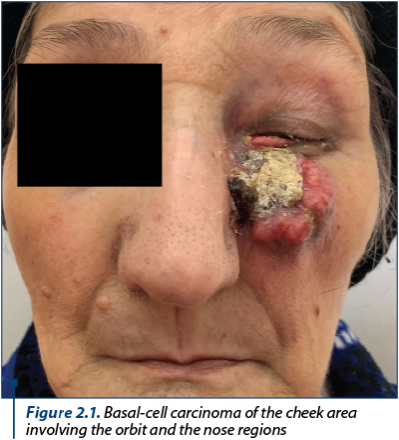 Figure 2.1. Basal-cell carcinoma of the cheek area involving the orbit and the nose regions