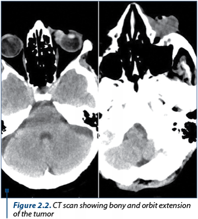 Figure 2.2. CT scan showing bony and orbit extension of the tumor