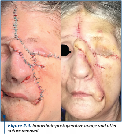 Figure 2.4. Immediate postoperative image and after suture removal