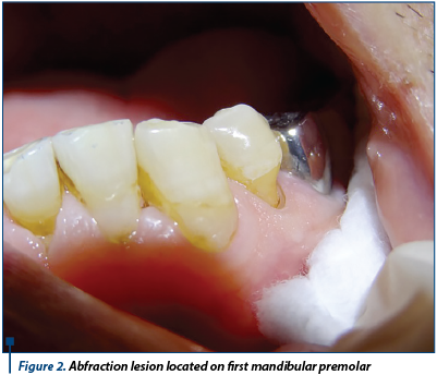 Figure 2. Abfraction lesion located on first mandibular premolar