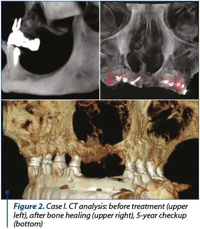 Figure 2. Case I. CT analysis: before treatment (upper left), after bone healing (upper right), 5-year checkup (bottom)