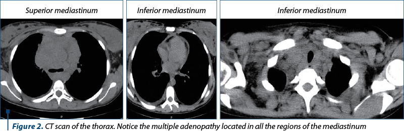 Figure 2. CT scan of the thorax. Notice the multiple adenopathy located in all the regions of the me
