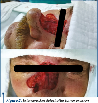 Figure 2. Extensive skin defect after tumor excision