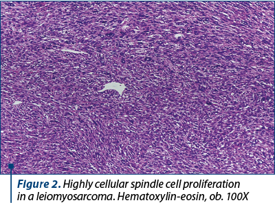 Figure 2. Highly cellular spindle cell proliferation  in a leiomyosarcoma. Hematoxylin-eosin, ob. 100X