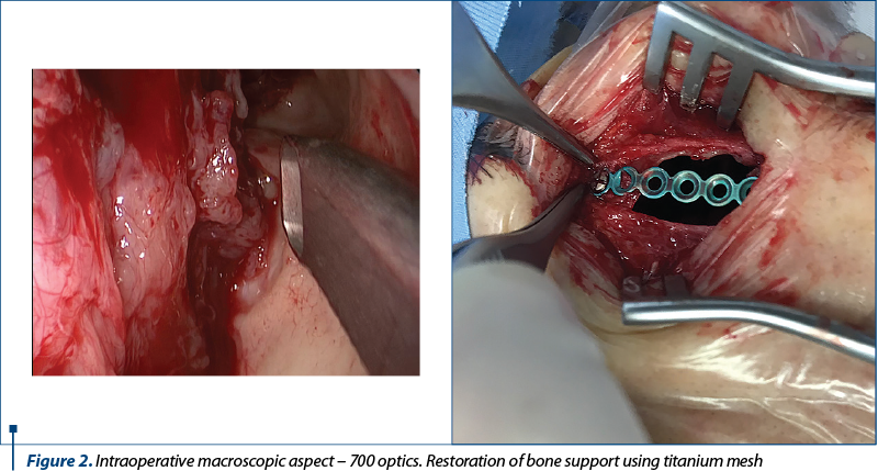 Figure 2. Intraoperative macroscopic aspect – 700 optics. Restoration of bone support using titanium mesh