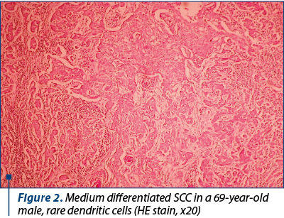 Figure 2. Medium differentiated SCC in a 69-year-old male, rare dendritic cells (HE stain, x20)