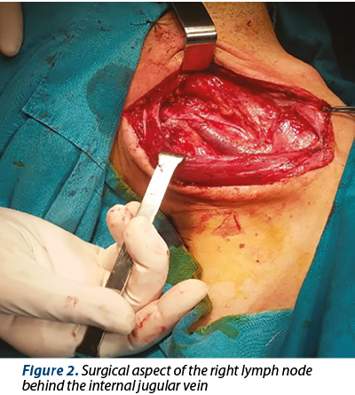 Figure 2. Surgical aspect of the right lymph node behind the internal jugular vein