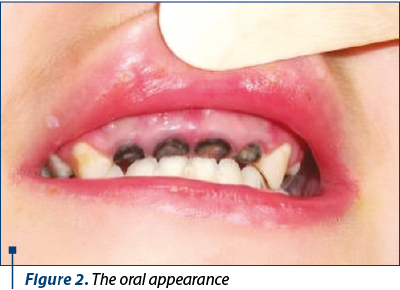 Figure 2. The oral appearance