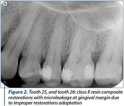 Figure 2. Tooth 25, and tooth 26: class II resin composite restorations with microleakage at gingival margin due to improper restorations adaptation