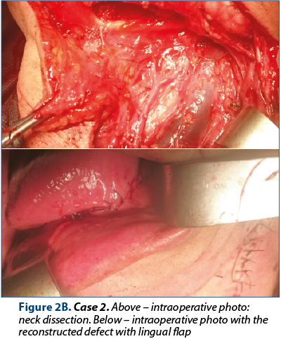Figure 2B. Case 2. Above – intraoperative photo: neck dissection. Below – intraoperative photo with the reconstructed defect with lingual flap