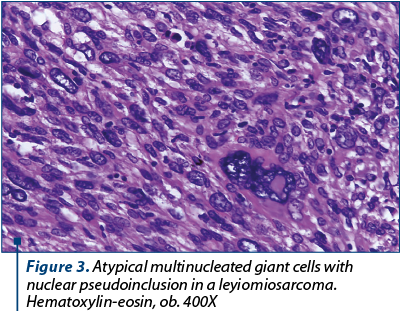 Figure 3. Atypical multinucleated giant cells with nuclear pseudoinclusion in a leyiomiosarcoma. Hematoxylin-eosin, ob. 400X