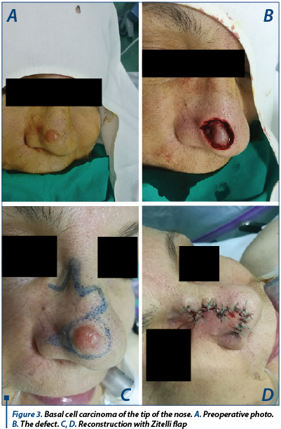 Figure 3. Basal cell carcinoma of the tip of the nose. A. Preoperative photo. B. The defect. C, D. Reconstruction with Zitelli flap