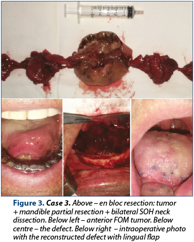 Figure 3. Case 3. Above – en bloc resection: tumor + mandible partial resection + bilateral SOH neck dissection. Below left – anterior FOM tumor. Below centre – the defect. Below right  – intraoperative photo with the reconstructed defect with lingual flap