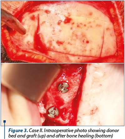 Figure 3. Case II. Intraoperative photo showing donor bed and graft (up) and after bone healing (bottom)
