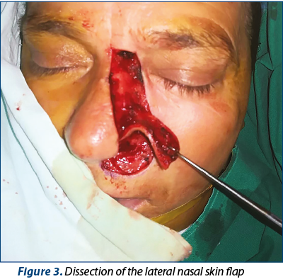 Figure 3. Dissection of the lateral nasal skin flap