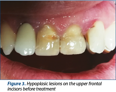 Figure 3. Hypoplasic lesions on the upper frontal incisors before treatment