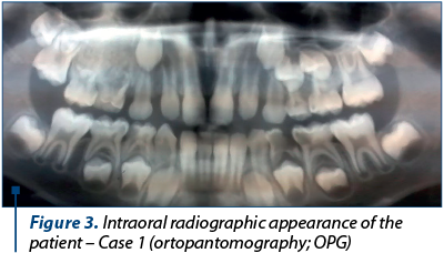 Figure 3. Intraoral radiographic appearance of the patient