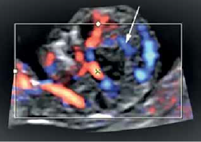 Figure 3. Pericallosal artery of a normal first-trimester fetus(6)