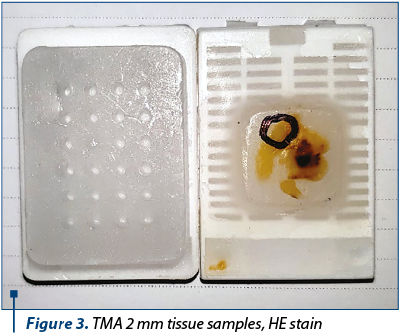 Figure 3. TMA 2 mm tissue samples, HE stain