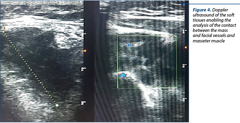 Figure 4. Doppler ultrasound of the soft tissues ena­bling the analysis of the contact between the mass and facial vessels and masseter muscle